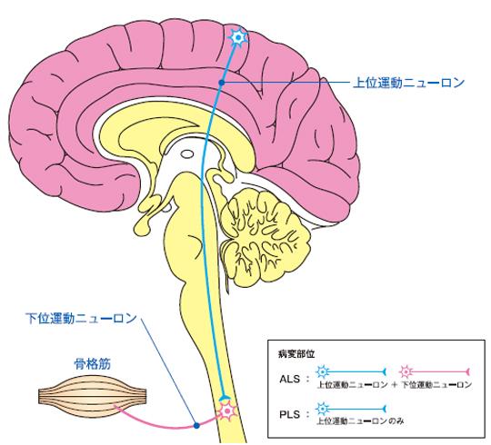 萎縮 硬化 索 性 症 側 筋